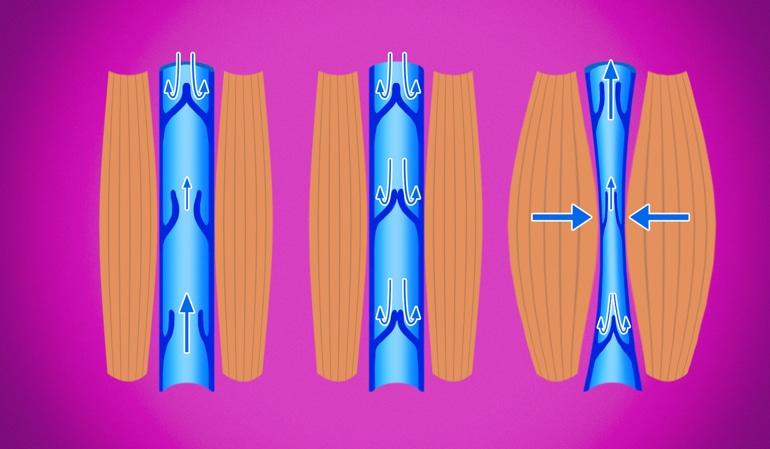 Изображение здоровых вен, иллюстрирующее нормальную компрессию вен, которая помогает направлять кровь к сердцу