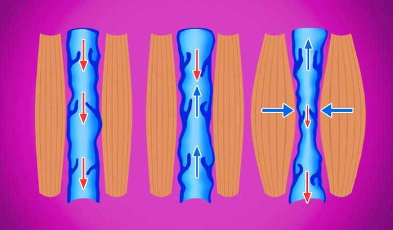 Изображение венозной недостаточности, иллюстрирующее нарушение компрессии и дальнейшую потерю эластичности вен, препятствующие циркуляции крови